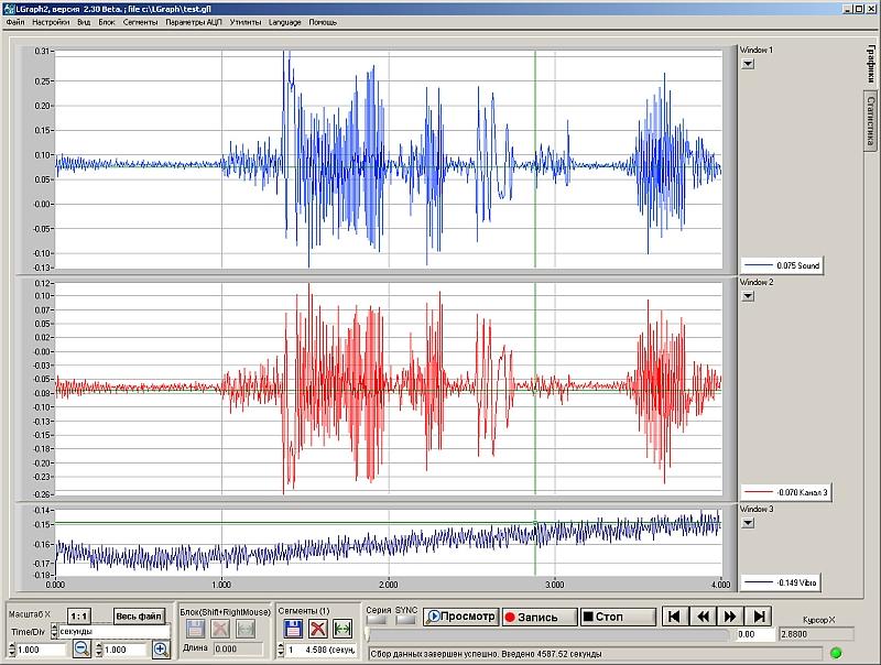 визуализация аналоговых сигналов во время регистрации