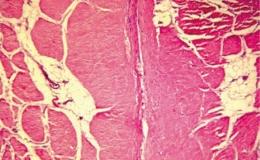 Стендовые исследования высокочастотной электросварки биологических тканей