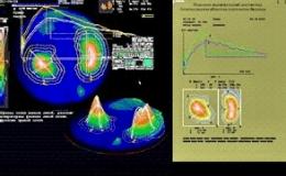 Применение модуля E20-10 в радионуклидной  диагностике